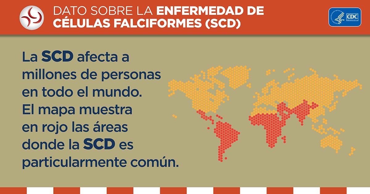La SCD afecta a millones de personas en todo el mundo. El mapa muestra en rojo aquellas áreas donde el SCD es especialmente común